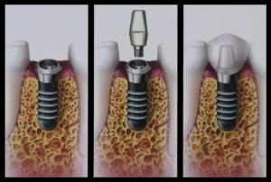 implant copy